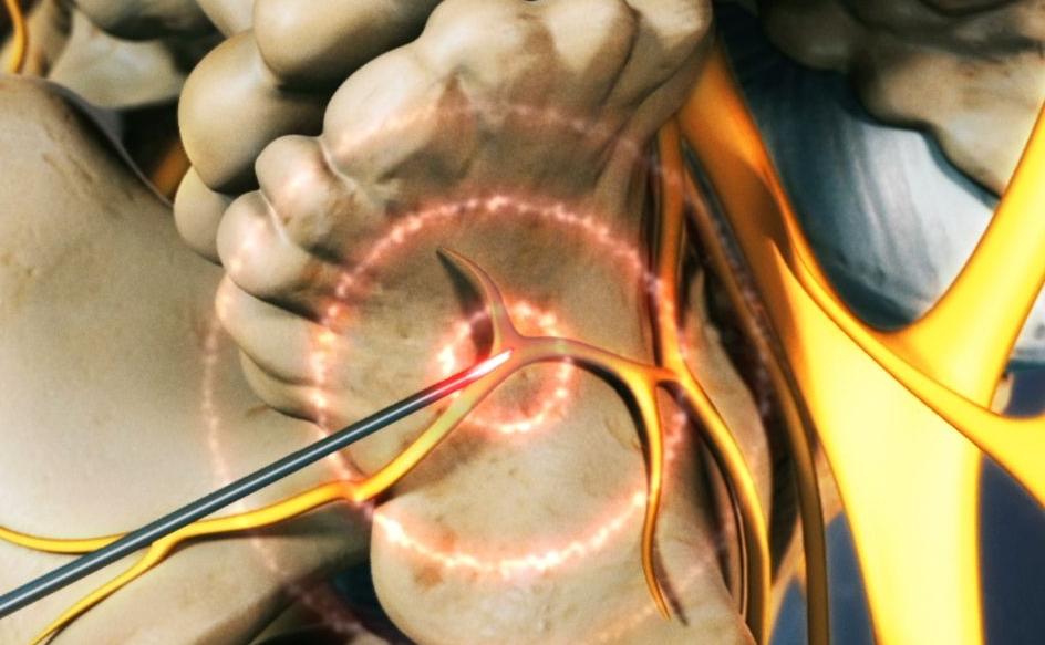 Radiofrequência, e o tratamento da dor